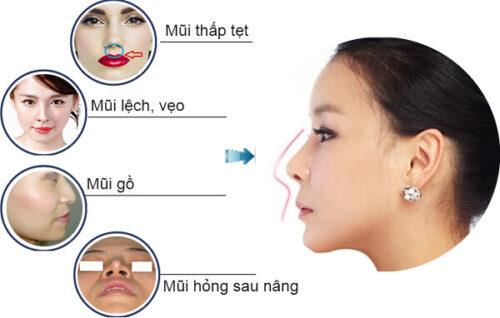 Những lưu ý khi nâng mũi để đảm bảo an toàn và chất lượng